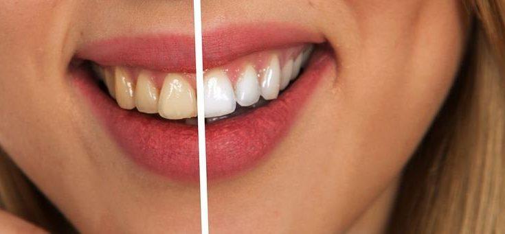 Dina tänder ska inte vara i vägen